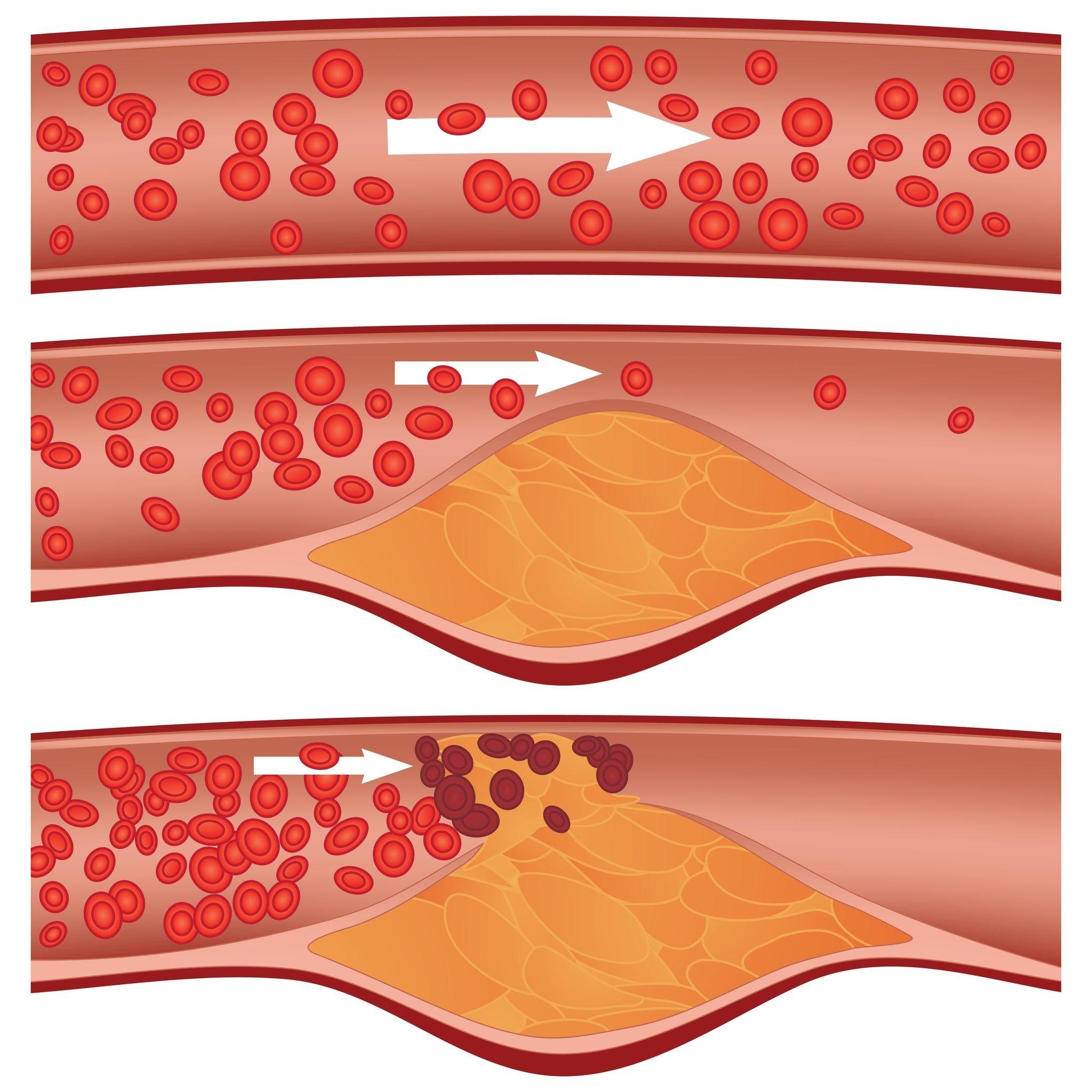 Доставкой холестерина в клетки занимаются белки-переносчики