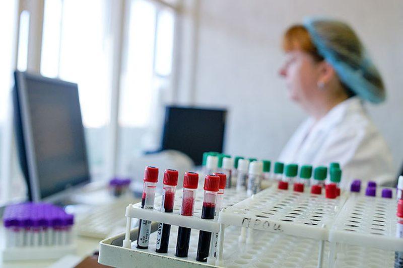 Что показывает липидный спектр крови?
