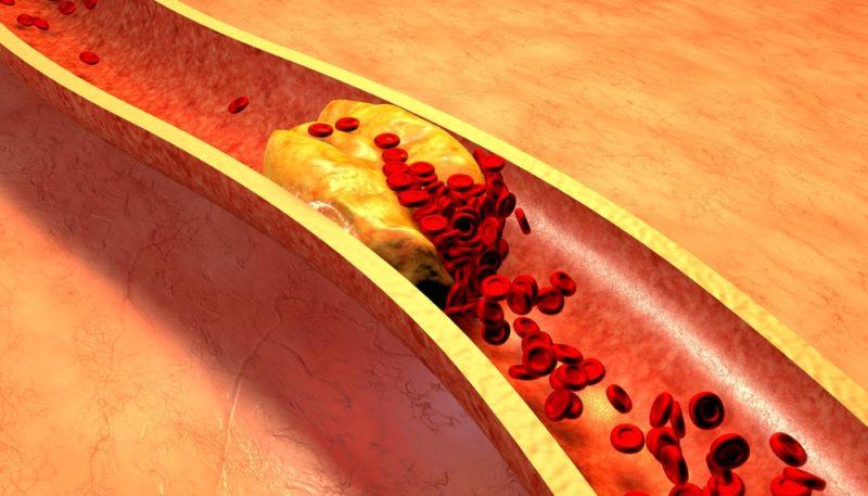 Холестерин 12 ммоль/л – опасен ли?