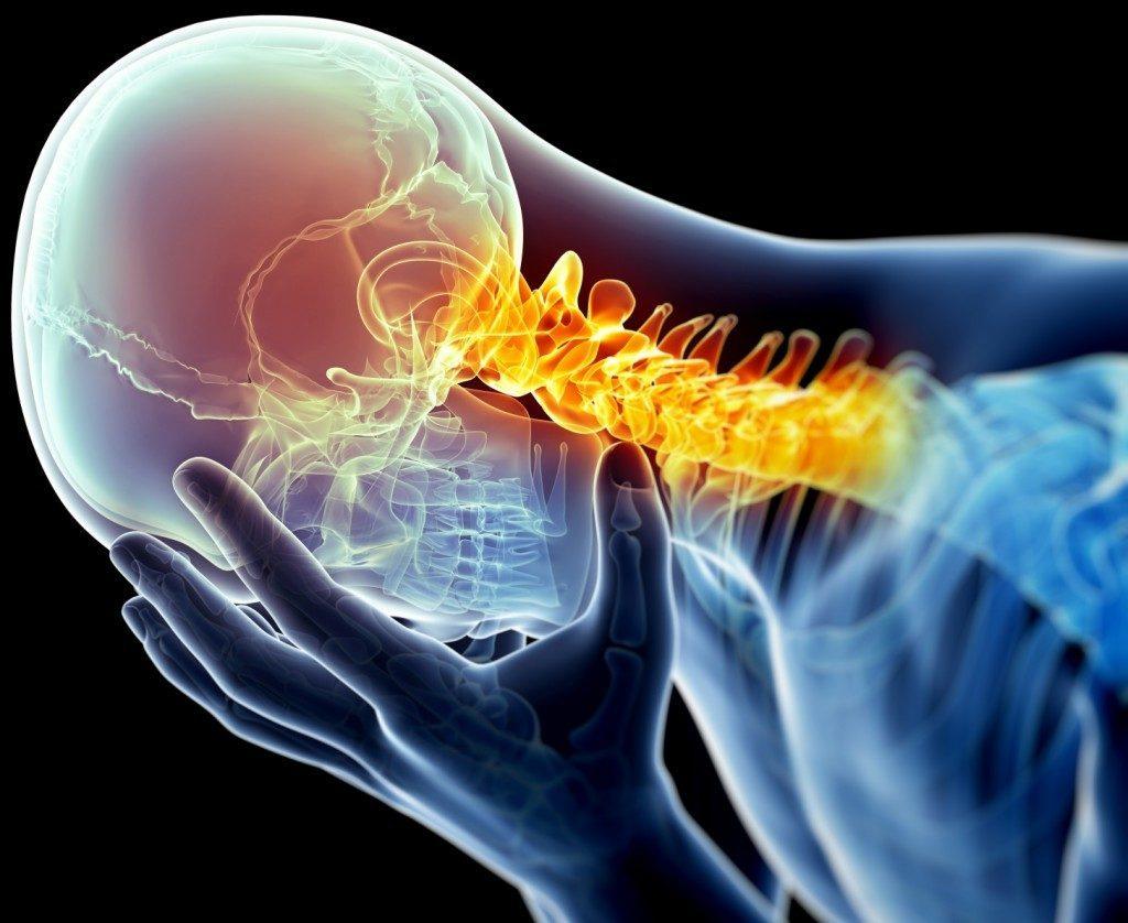 Атеросклероз кровеносных сосудов шейного отдела