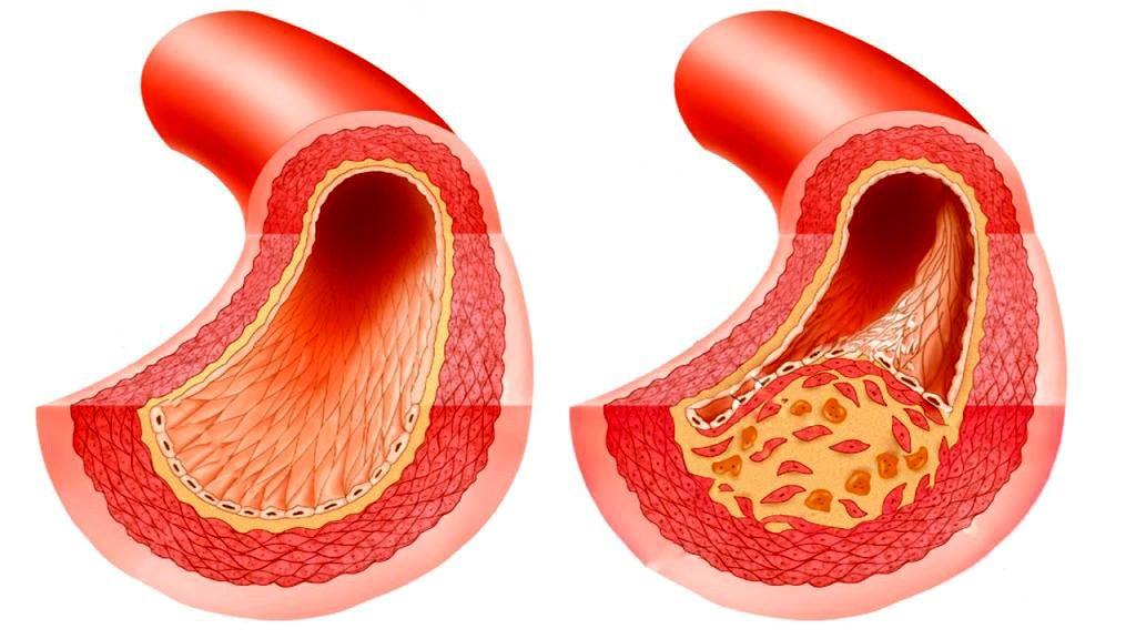 Наиболее эффективные способы лечения атеросклероза кровеносных сосудов