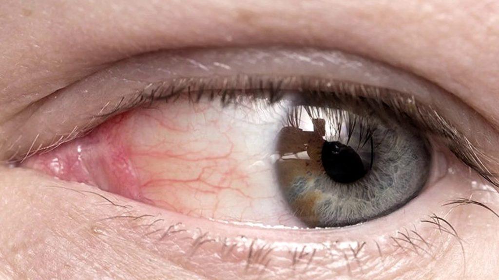 Лечение и профилактика атеросклероза сосудов сетчатки глаза