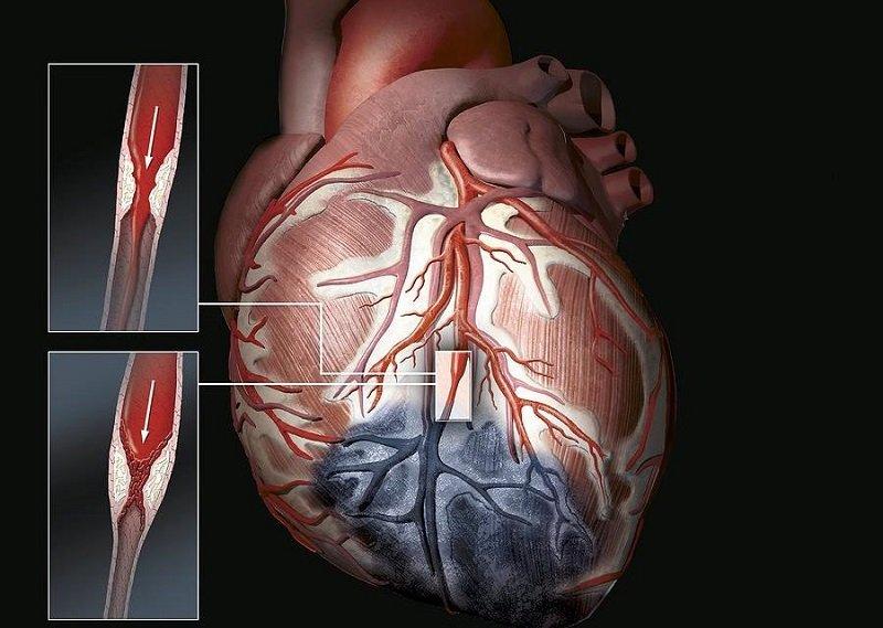 Долго ли живут с диффузным кардиосклерозом?