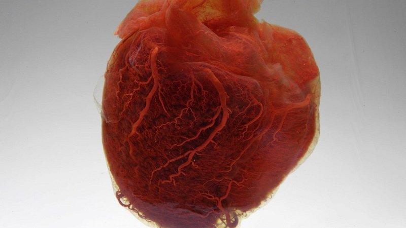 Почему мелкоочаговый кардиосклероз может стать причиной смерти?