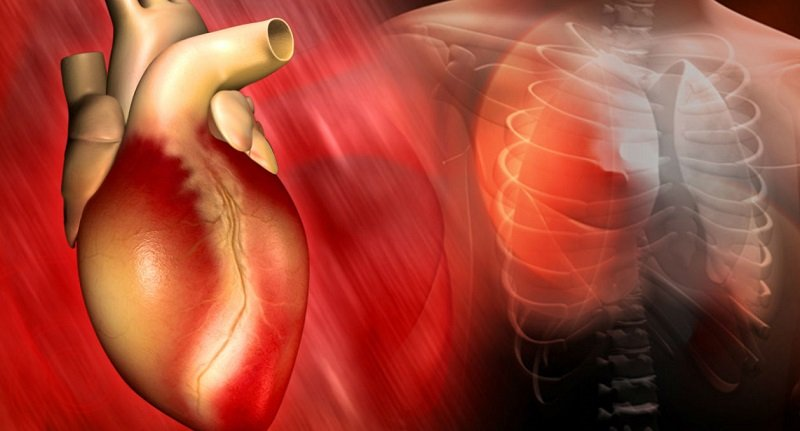 Особенности развития кардиосклероза сердца