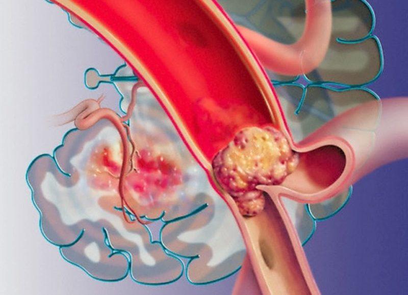 Симптомы развития атеросклероза